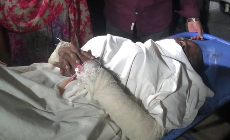 Woman set on fire by 'husband' in Laxmipur