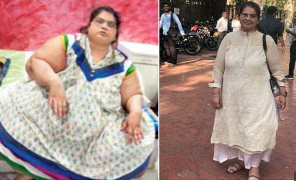 Amita undergoes weight loss surgeries lost 214 kg weight