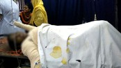 One of Agargaon TV blast victims dies at DMCH
