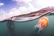 What to do if you get stung by jellyfish?