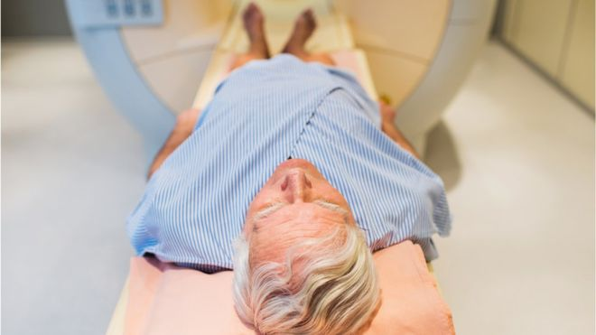 Prostate cancer screening scan hope