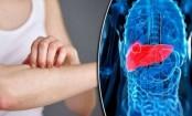 High iron linked to diabetes, liver disease: study