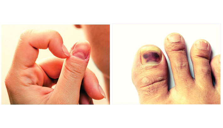 If you have this mark on your nail, get tested for skin cancer