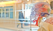 Neuromodulation helps stroke patients recover