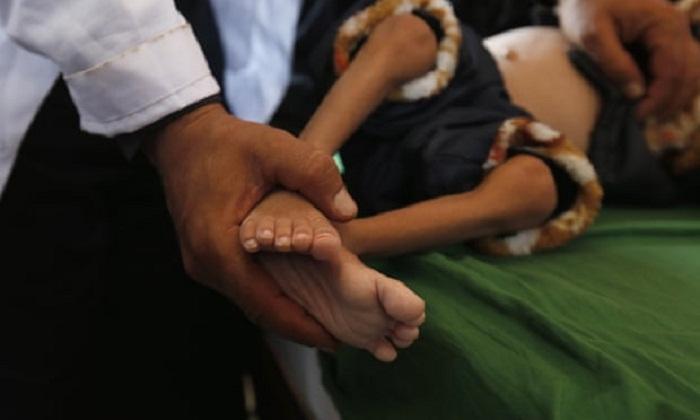 Worsening world hunger affects 821 million: UN