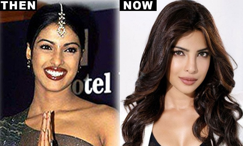 Priyanka almost lost her debut film after a nose surgery