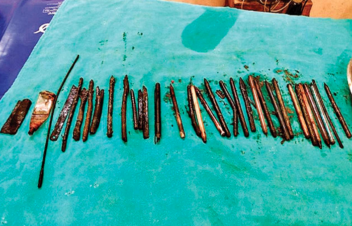 33 pens, Blades found in young man's stomach!