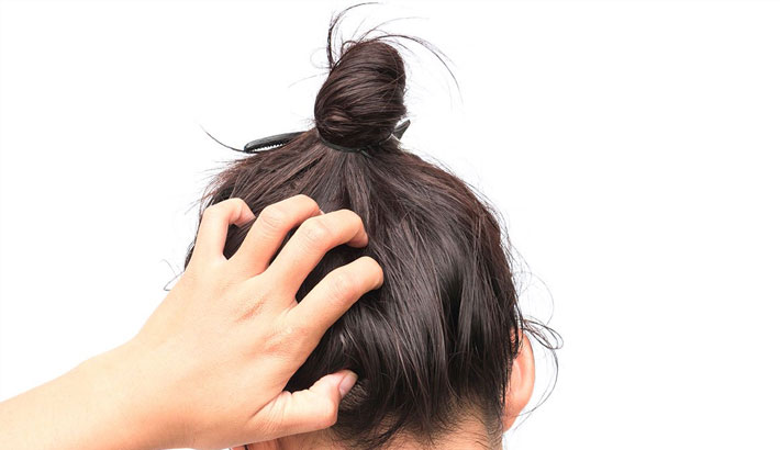 Itchy Scalp: The Remedies