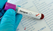 High Court wants steps against charging of excessive fees for Dengue tests