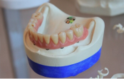 Researchers identify gene linked to tooth healing