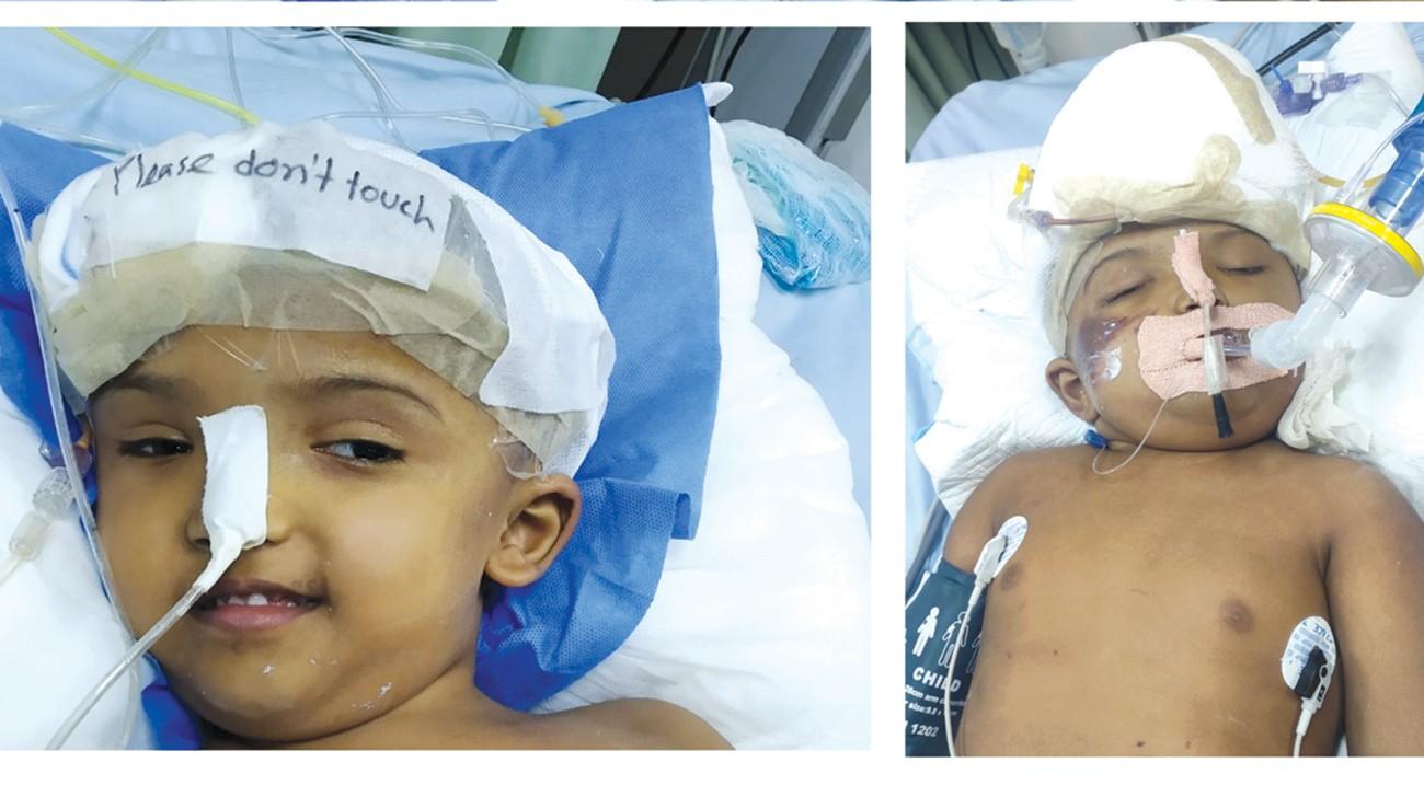 Maleque visits conjoined twins Rabeya, Rukaya at CMH