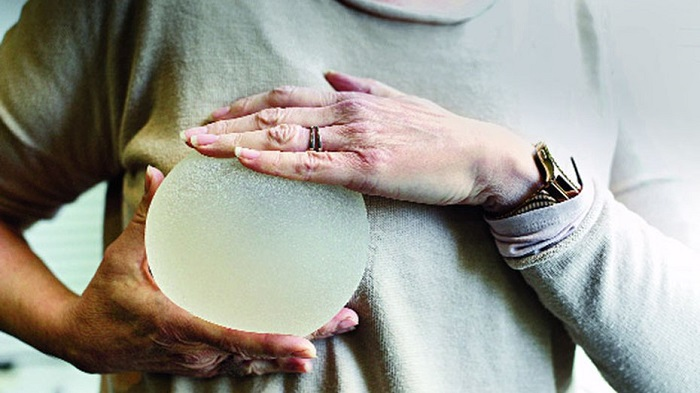 After Europe, breast implants recalled in the US