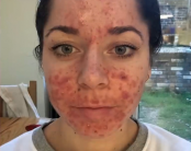 Woman quits job as boils erupt in 'worst case of acne'