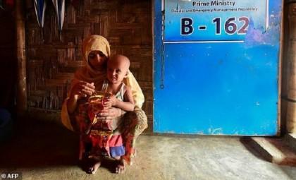 'Miracle' Rohingya baby turns two on crackdown anniversary