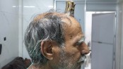 Indian man grows devil's horn after injury