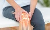 Make smarter food choices to combat arthritis