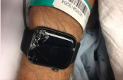 Apple Watch saves biker's life after detecting fall