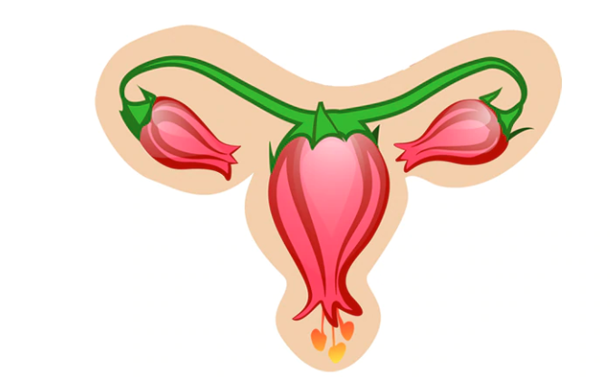 Everything you need to know about PCOS