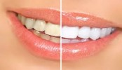 How you can save your teeth from coffee stains