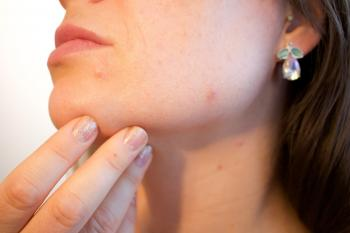 Acne can be caused by poor dietary, increased stress