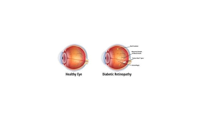 Effective treatments for diabetic retinopathy found