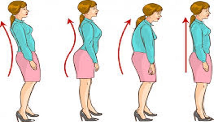 Bad posture should improve
