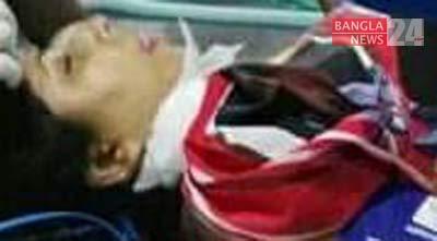 Woman injured in Shantinagar road crash dies at DMCH