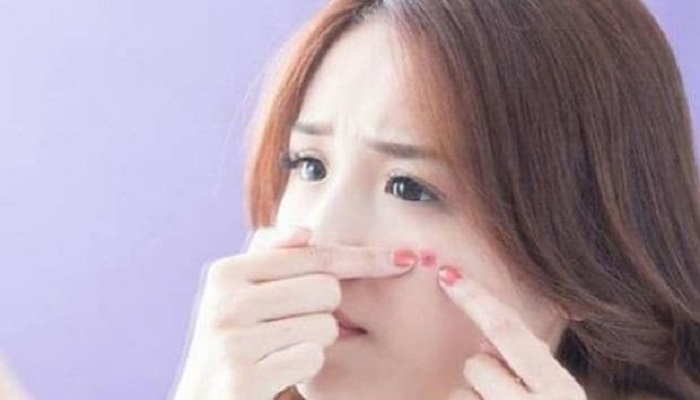 Get rid of acne with home ingredients