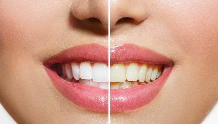 Want white teeth? Try these home remedies
