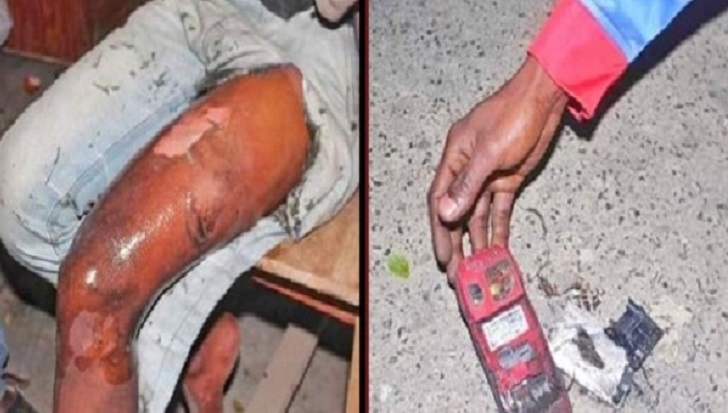 Youth suffers burn injury as mobile phone explodes in pocket