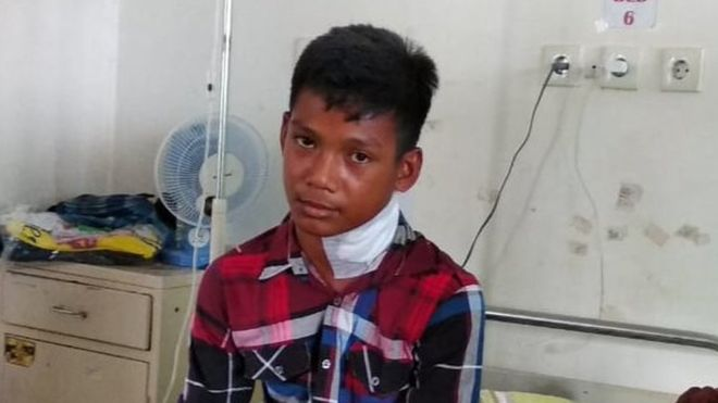 Indonesian needlefish boy: 'A fish jumped out of the sea and stabbed my neck'