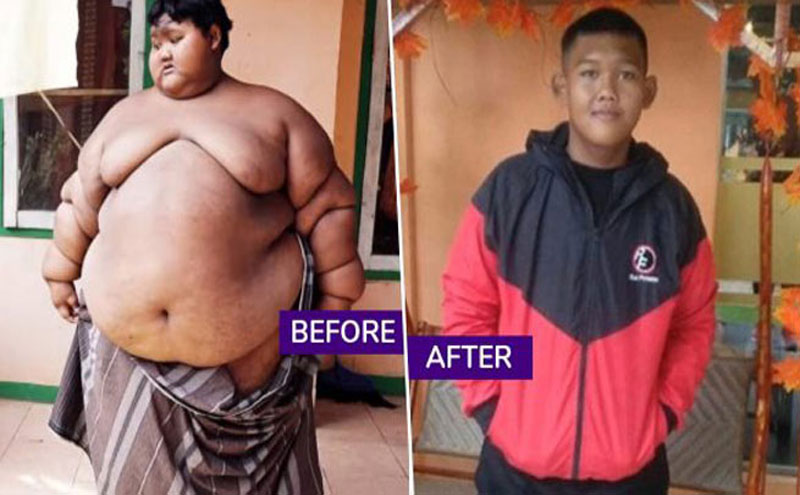 Teenager reduced 87 kg weight