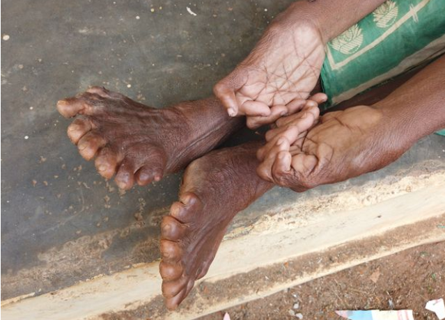 Woman with record breaking 31 fingers and toes