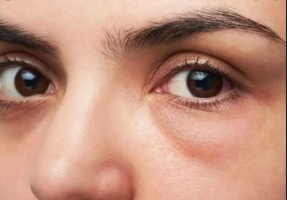 How to fight puffy eyes
