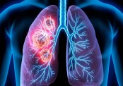 Lung cancer rates rising in young women
