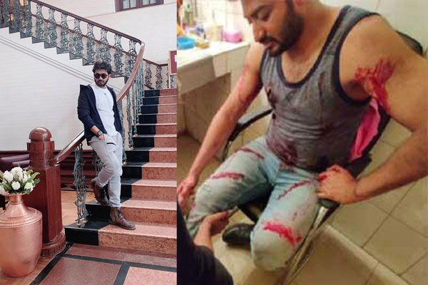 Actor Bappy injured during shooting at BFDC