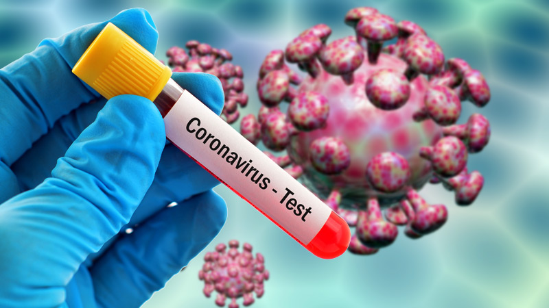 PM asks to collect 2 samples from each upazila for coronavirus test: DGHS