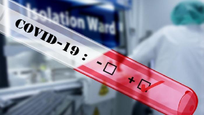 COVID-19 test begins in Khulna