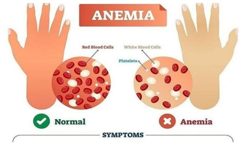 Treat anaemia timely to avoid serious complications