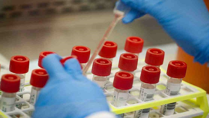 Jahangirnagar University sets up Covid-19 testing lab