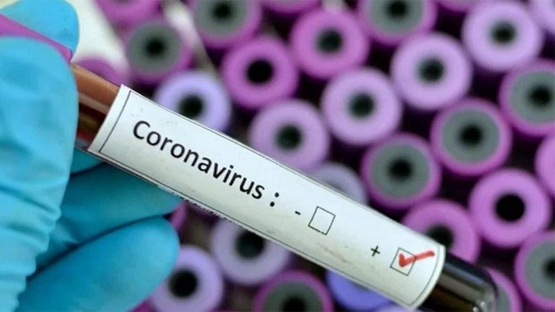 COVID-19 positive cases reach 848 in Rangpur division