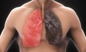 Coronavirus: Warning thousands could be left with lung damage
