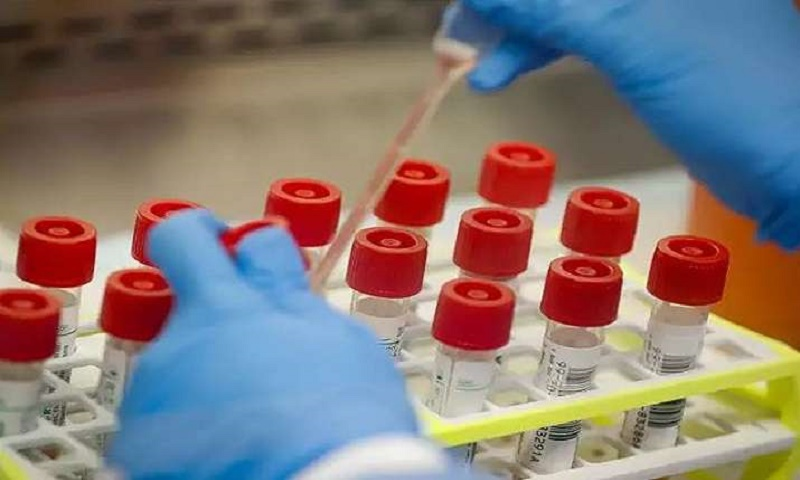 Antibody tests may help detect coronavirus infection if used at right time: Scientists