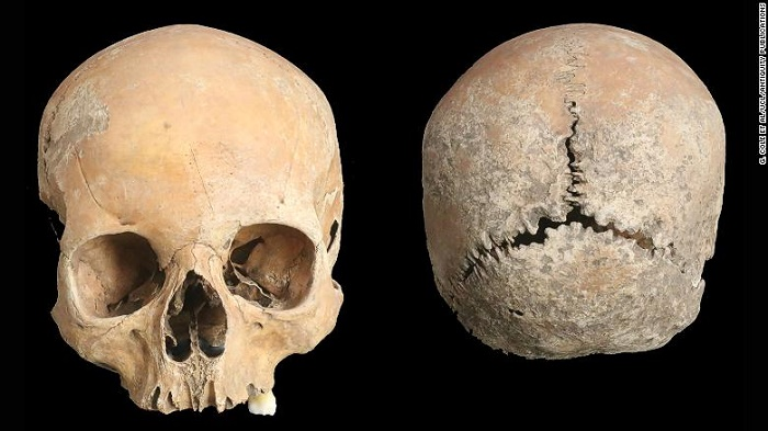 An Anglo-Saxon girl had her nose and lips cut off as punishment, an ancient skull shows