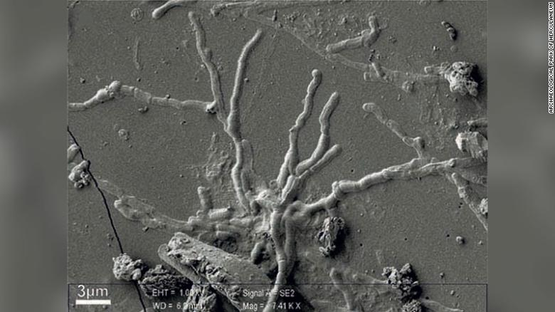 Scientists find intact brain cells in 2,000 year old skull