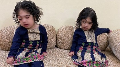 Conjoined twins return home after successful separation