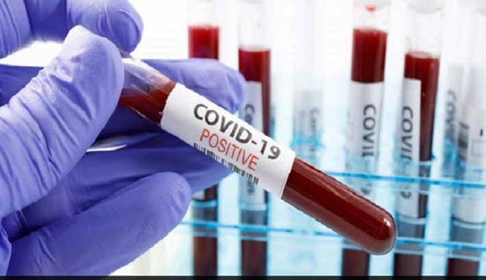 Coronavirus: Seven different forms of mild COVID-19, according to a new study