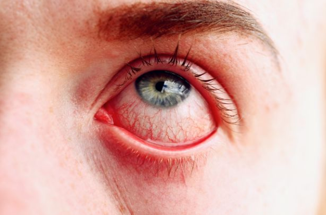 4 mild Covid-19 symptoms you shouldn't ignore including eye infection and 'fog'