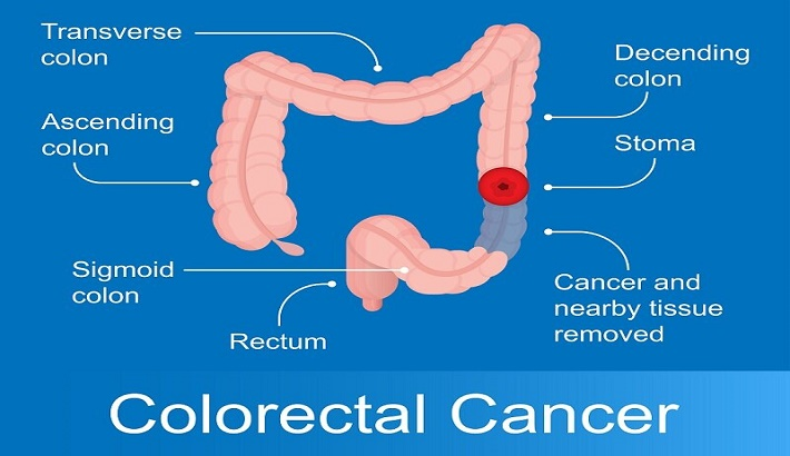 When should be get screened for colon cancer?