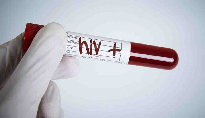 Undiagnosed cases of HIV climb in Europe: report